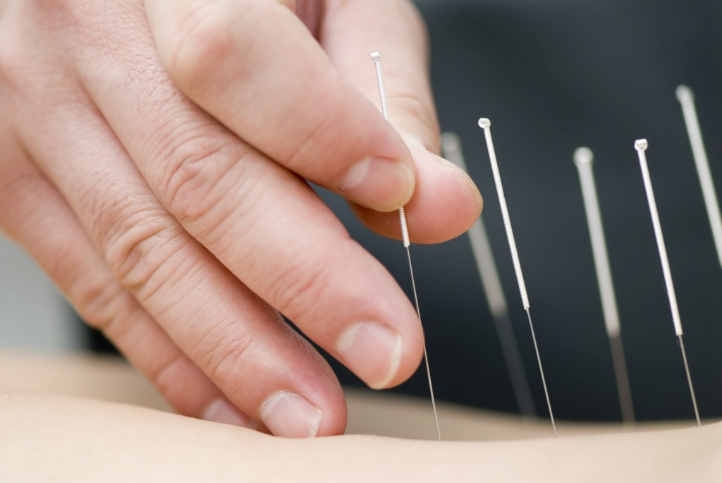 akupunktur 3